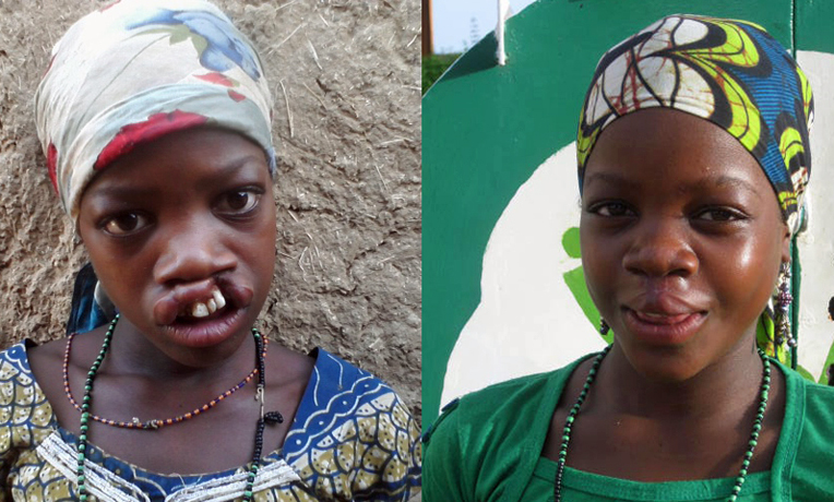 Niger Cleft Lip Surgery