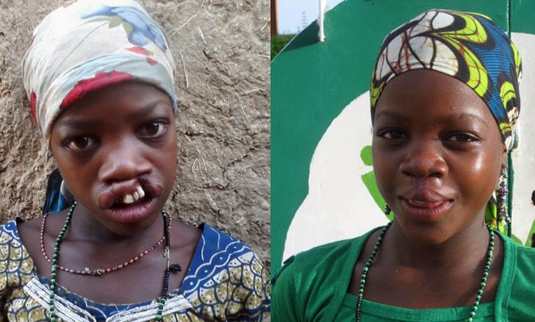 Niger Cleft Lip Surgery