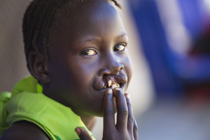 Healing and Hope in South Sudan