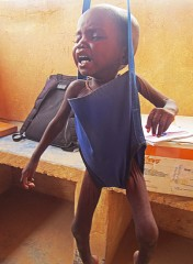Nafissa was suffering from severe acute malnutrition when Samaritan's Purse staff first met her.