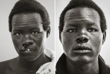 South Sudan cleft lip
