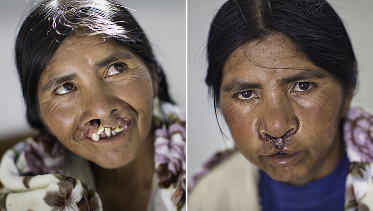 """I like how it looks. I feel like a different person,"" 45-year-old Matilde said after her cleft lip repair. She was our first patient ever in Bolivia. After more than four decades of stigma—at one point, her community absurdly accused her of being a witch—she begins a new journey. (Note: In the ""after"" photo her face was swollen, and it was still painful for her to smile, but those routine post-operation issues quickly disappear.)"
