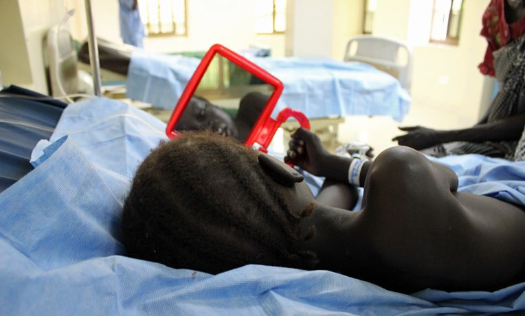 Cleft Lip Program South Sudan