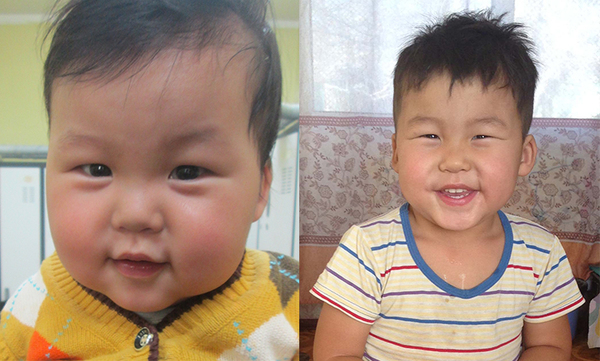 Dolgion from Mongolia, Children's Heart Project