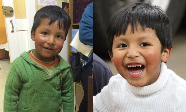 John from Bolivia, Children's Heart Project