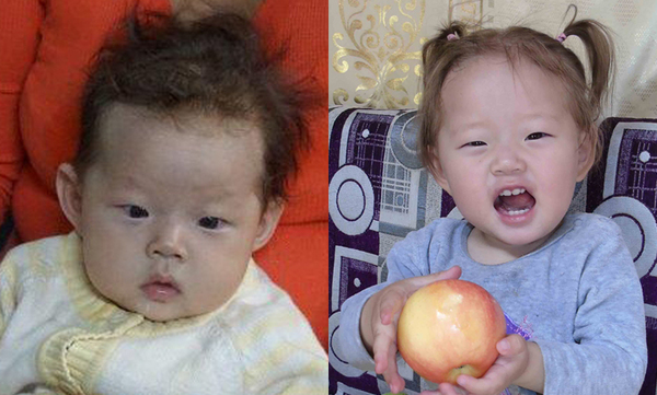Munkhgerel from Mongolia, Children's Heart Project