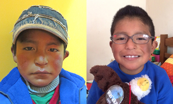 Willy from Bolivia, Children's Heart Project