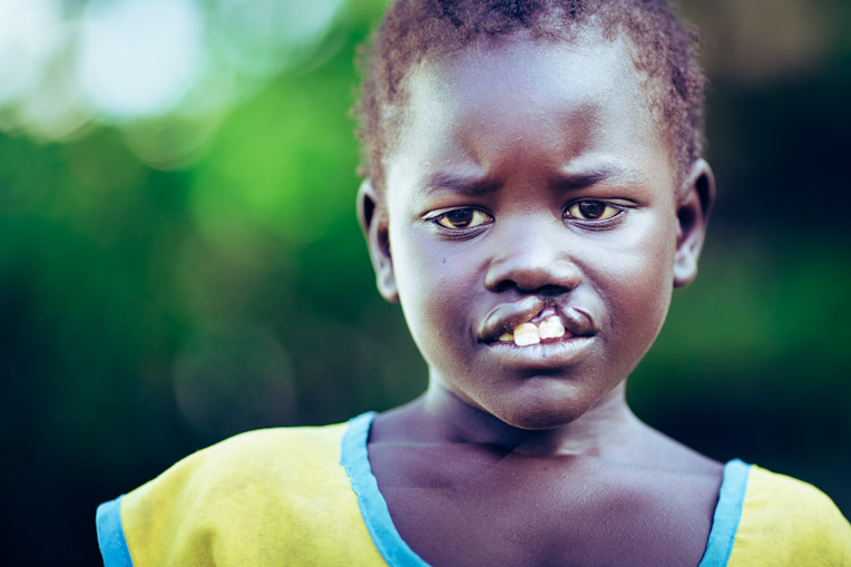 In South Sudan, children who are born with a cleft lip have little hope of ever receiving surgery.