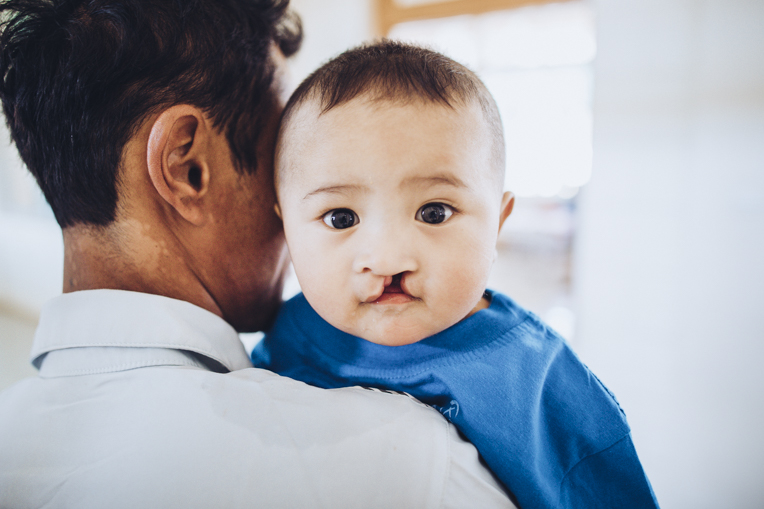 A number of babies and children received surgery during the weeklong project.