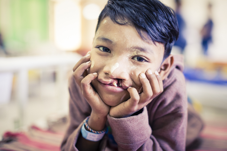 Cleft lip patient in Myanmar