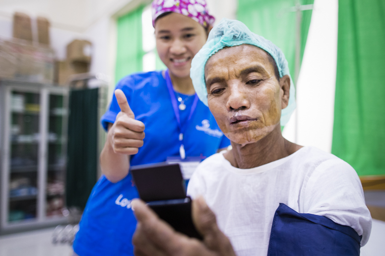Thaung sees himself for the first time after surgery.