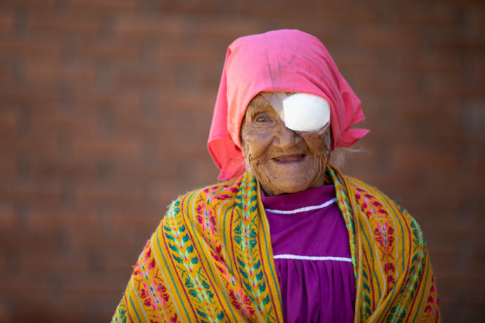 Cataract surgery patient in Mexico