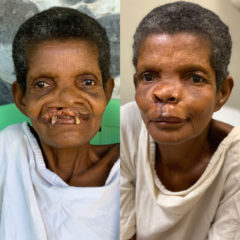 Before and after Secoh's cleft lip surgery at ELWA.