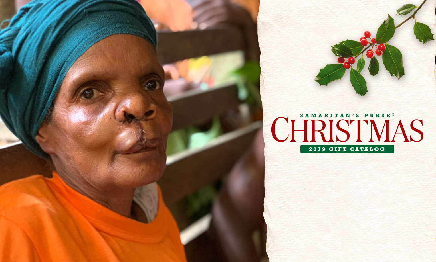 Samaritan's Purse provides life-changing cleft lip-palete surgeries in communities all over the world.