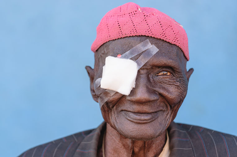 Yinat struggled with poor vision for nearly 20 years.